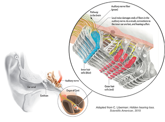 Hidden hearing loss, adapted from C. Liberman, Scientific American, 2015